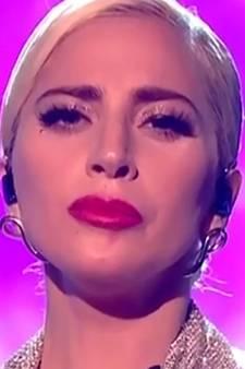 Wat heeft Lady Gaga aan haar gezicht laten doen?