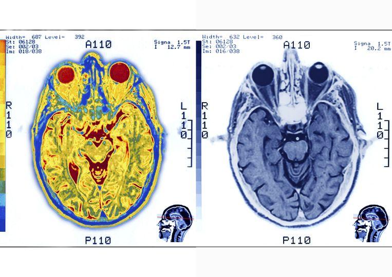 MRI-scan van onze hersenen en ogen. Beeld Universal Images Group via Getty