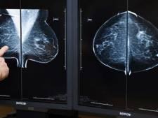 Lagere overlevingskans na borstamputatie bij kanker