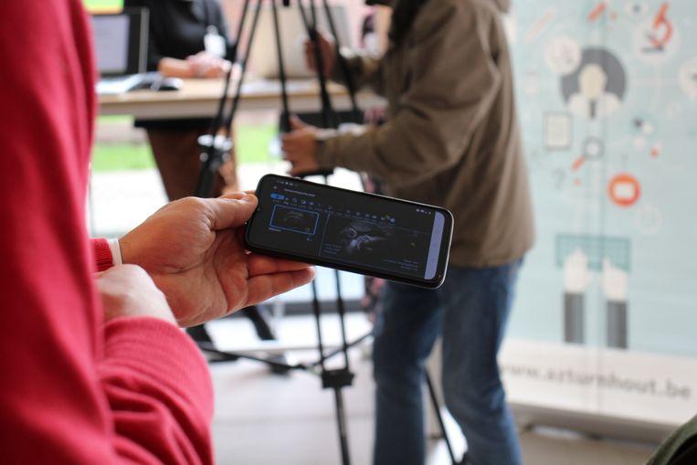 Via mynexuzhealth kan je voortaan ook echobeelden op je smartphone bekijken.