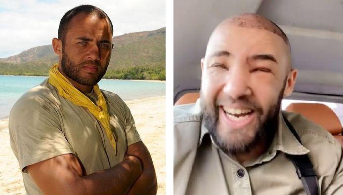 Mohamed est apparu défiguré sur Instagram après une greffe de cheveux.