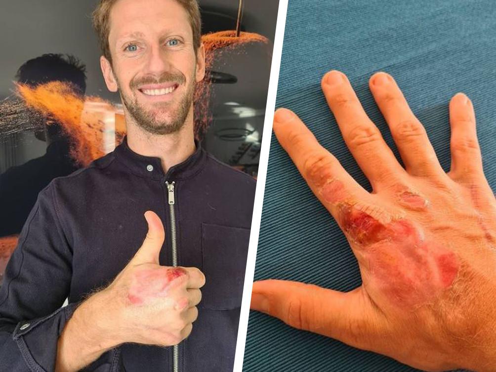 Romain Grosjean deelde twee foto's van zijn gehavende rechterhand.