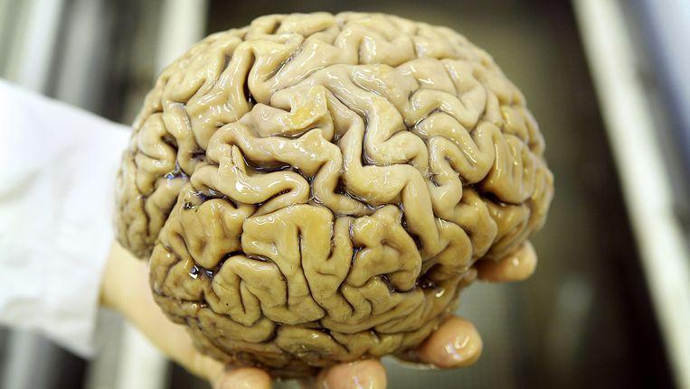 Het brein. Beeld anp