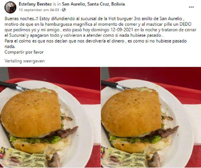 De foto van het broodje hamburger en stukje vinger.