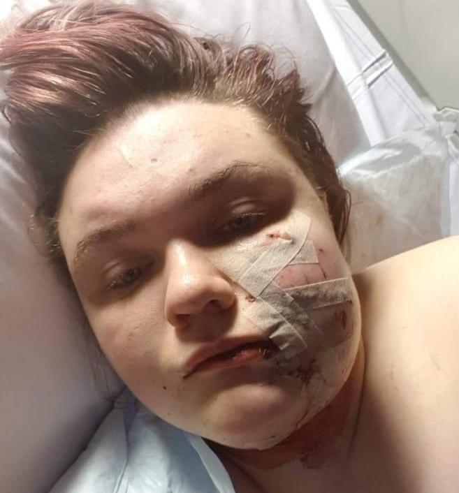 Julia Korszak nadat ze is geopereerd aan haar verwondingen.