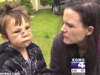 """Jongetje over gruwelijke aanval pitbull: """"Hij at mij op"""""""