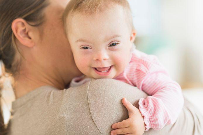 Een baby met het syndroom van Down.