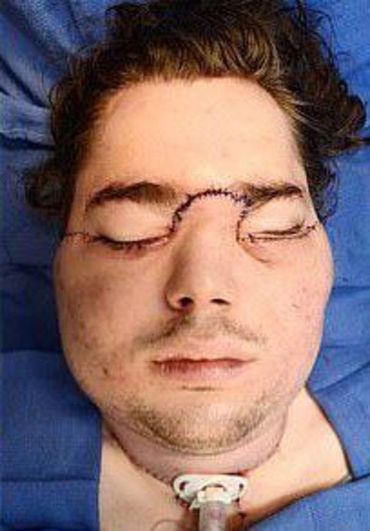Cameron kort na de operatie.