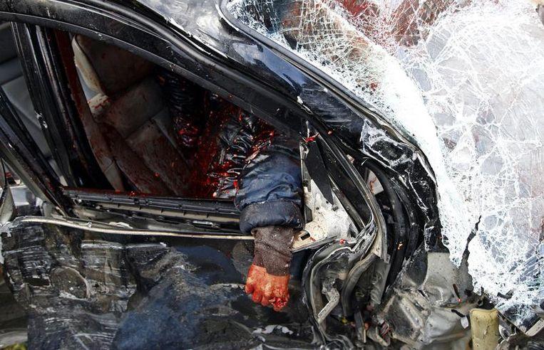 Een arm is te zien van een soldaat, loyaal aan Kadhafi, die doodgeschoten werd door opstandelingen in Benghazi. Beeld reuters
