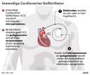 Zo werkt de Inwendige Cardioverter Defibrillator (ICD).