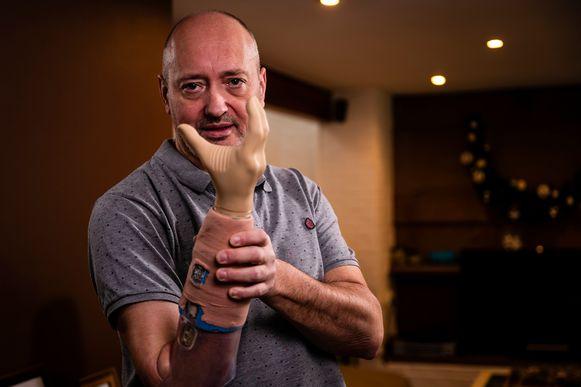 Met zijn tijdelijke prothese kan Roman zijn hand enkel openen en sluiten...