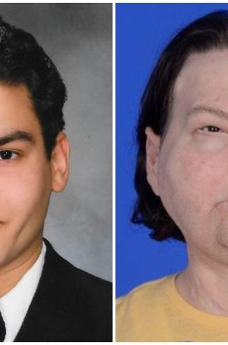 Wereldprimeur: verbrande Amerikaan krijgt nieuw gezicht en handen dankzij Leuvense puzzelstukjes