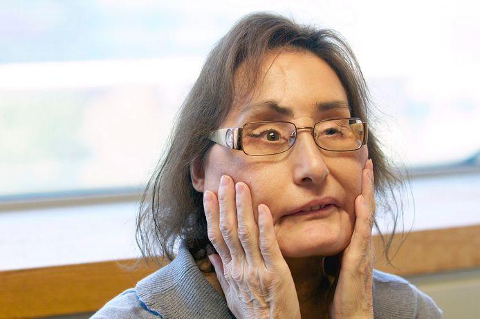 Connie Culp twee jaar na haar gedeeltelijke gezichtstransplantatie in de Cleveland Clinic in Cleveland.