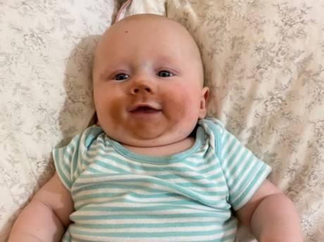 Jonge moeder ontdekt waarom zelfbruiner en borstvoeding geen goede combinatie zijn
