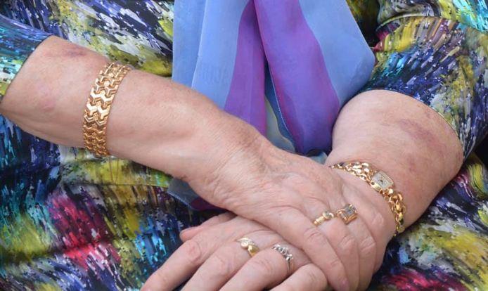 Deze sieraden, maar ook nog andere juwelen werden gestolen uit het kluisje op de kamer van een 92-jarige bewoonster van het woonzorgcentrum Ter Linde in Gits.