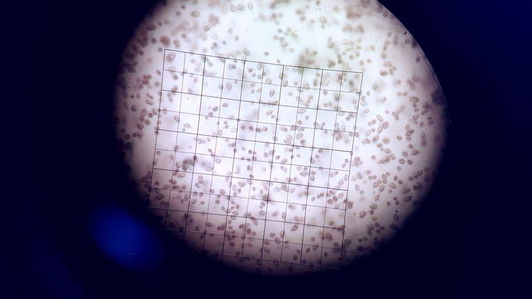 Dunaliella Salina door de microscoop. Beeld Corina Brussaard