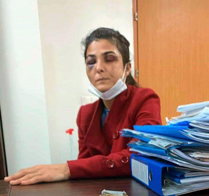 De Turkse Melek Ipek schoot haar echtgenoot dood, nadat hij haar zwaar had mishandeld en met dood had bedreigd.