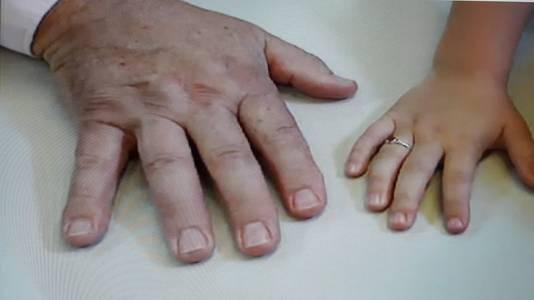 Grote handen met brede nagels kenmerken de afstammelingen van Karbaat. Hier zijn hand naast die van een wettige dochter