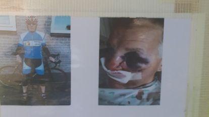 """Frans zoekt reddende engel die hem van het fietspad raapte: """"Ik denk dat ze verpleegster is"""""""