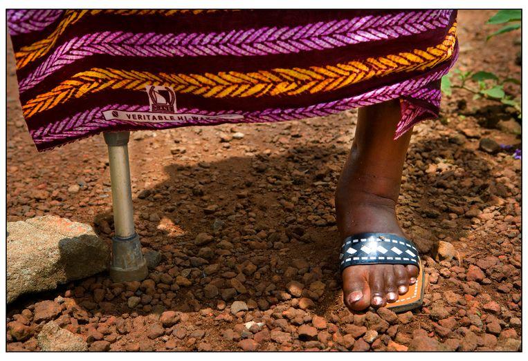 Een poliopatiënt in Sierra Leone, 2007. Beeld Hollandse Hoogte /  ANP