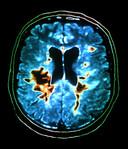 Aangetaste plekken in de hersenen van een MS-patiënt.