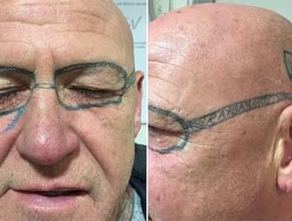 Man wordt wakker na vrijgezellenavond: Ray-Ban op gezicht getatoeëerd