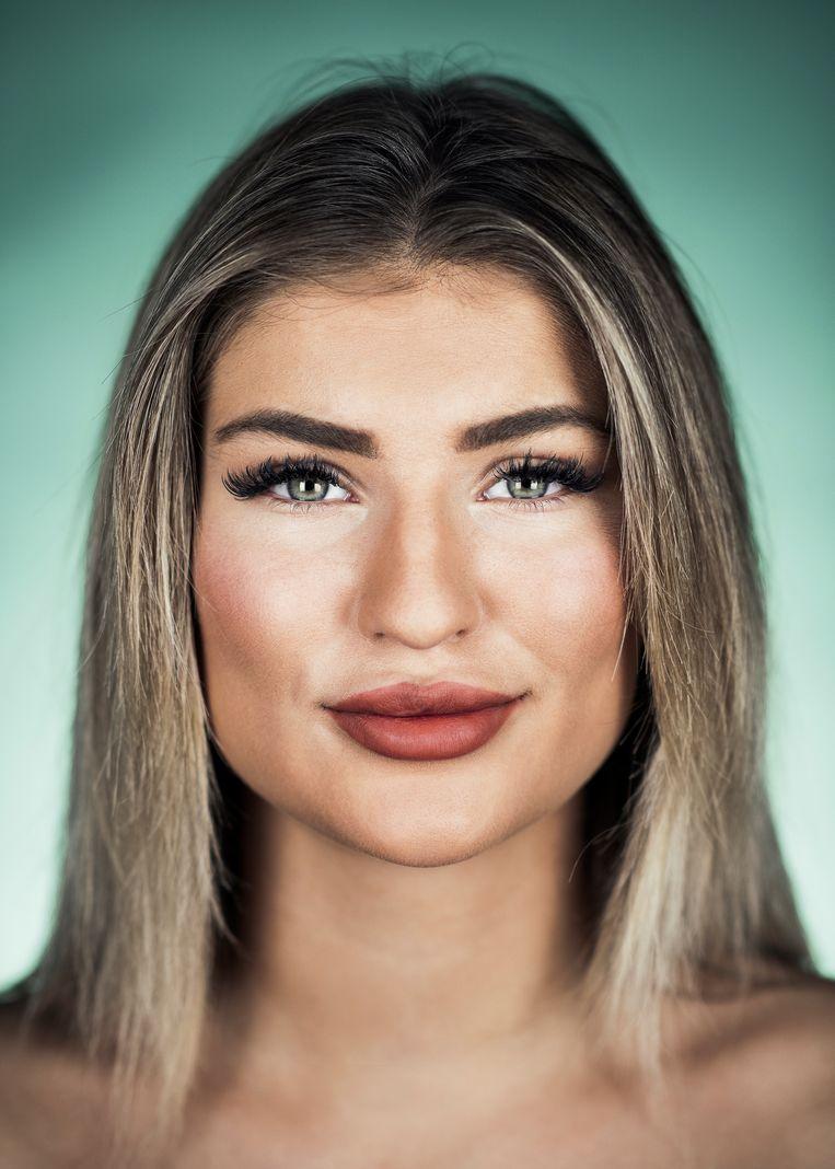 """Kyara Smets (20): """"Het laten opvullen van je lippen werkt heel verslavend."""" Beeld Tim Coppens"""