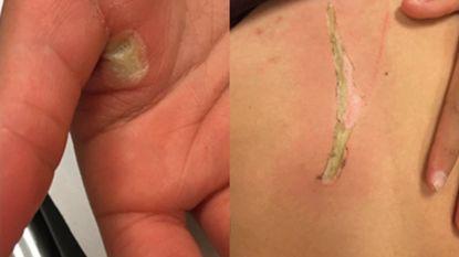 Meisje (13) loopt brandwonden op nadat smartphone in bad valt