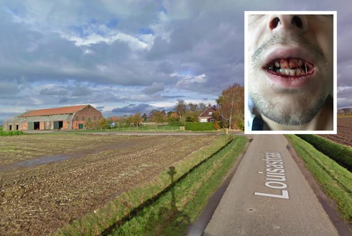 De Louisastraat. Inzet: De bebloede mond van het slachtoffer vlak na de vechtpartij.
