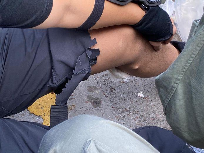 Op een door de politie verspreide foto is te zien hoe een pijlpunt in de kuit van de agent zit.