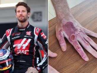 Het verband is eraf: F1-piloot Romain Grosjean toont schade aan linkerhand