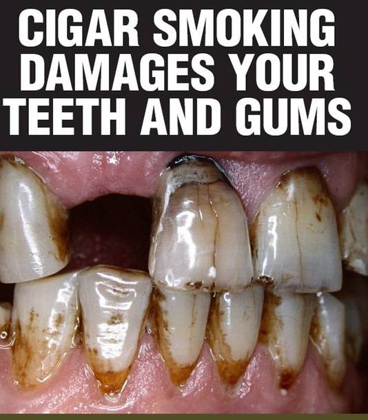 Een voorbeeld van een afbeelding die rokersgebruik moet afschrikken. In Australië staat dit op sigarettenpakjes.