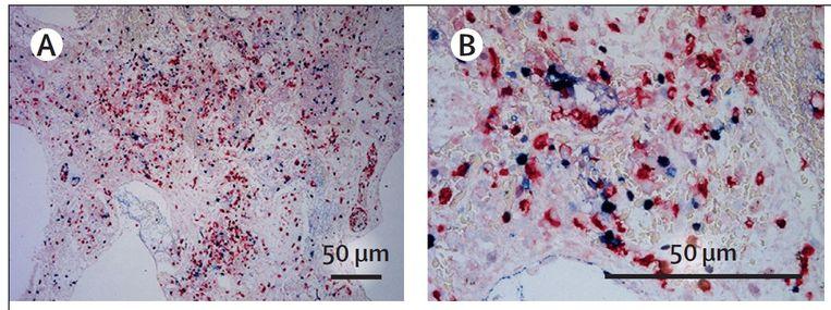 Microscoopfoto van het weefsel van een coronapatiënt, met slierten eiwit en dna, uitgeworpen door afweercellen. Beeld The Lancet