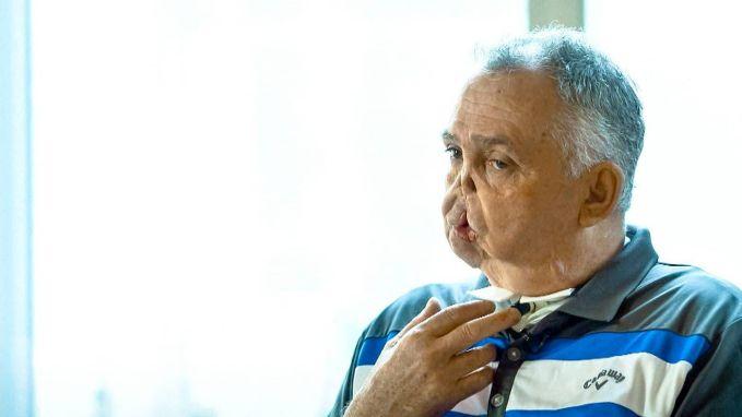 Maurice (64) geraakte zwaar misvormd tijdens jachtongeval maar krijgt nu nieuw gezicht