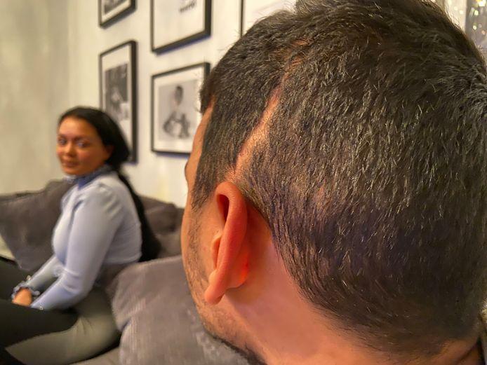 Younes (wil liever niet herkenbaar in beeld)  laat zijn litteken zien. Op de achtergrond zijn zus Chagraa: 'Ik ben mijn broertje kwijt, ik zorg nu voor hem als mijn kind'.