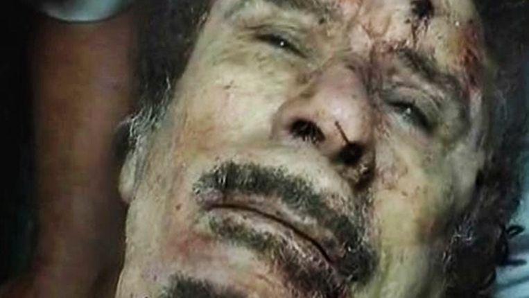 De inmiddels overleden Kaddafi in het ziekenhuis. Beeld