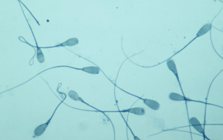 'De gemiddelde hoeveelheid sperma bij mannen in het Westen neemt jaarlijks met ongeveer 1 procent af', weet epidemioloog Shanna Swan.