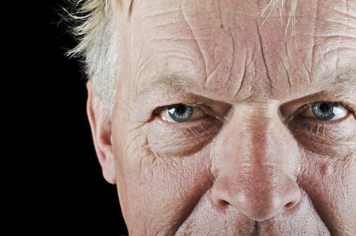 Mannen tekenen eerder in hun gezicht dan vrouwen, zo blijkt uit het Rotterdamse rimpel-onderzoek.