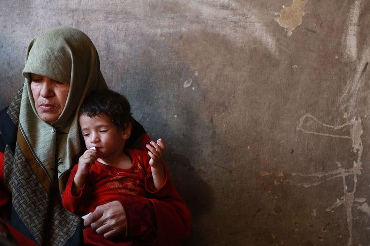 De 1-jarige Qamar uit de wijk Sabqa, in Oost-Ghouta, is een van de vele ondervoede kinderen in her gebied. Beeld afp
