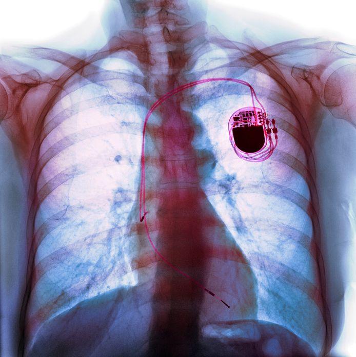 Röntgenfoto van de borstkas van een hartpatiënt met pacemaker.