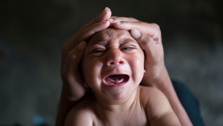 Baby Jose Wesley werd geboren met microcefalie. Beeld AP