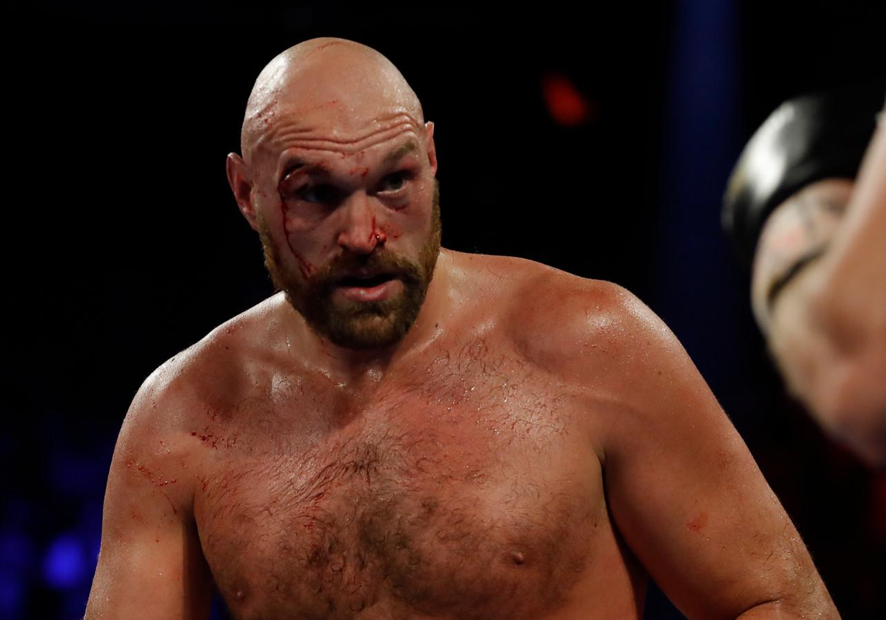 14 september 2019: Tyson Fury houdt met een snee boven het oog  tijdens het gevecht met Otto Wallin.