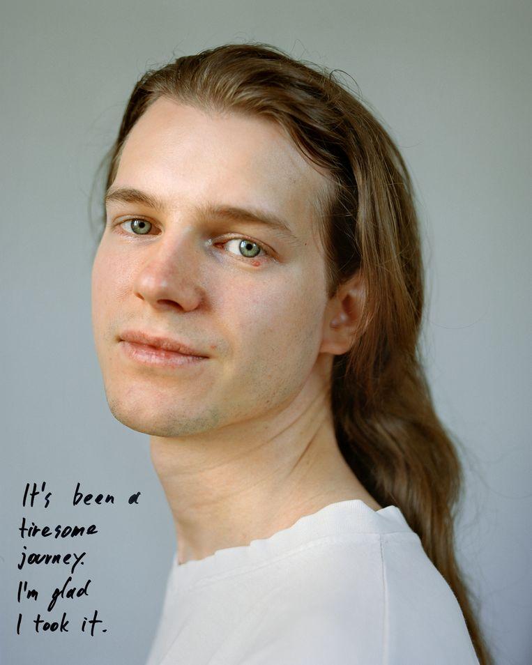 Elias, in het verleden getroffen door anorexia: ''Het was een vermoeiende weg, maar ik ben blij dat ik hem genomen heb''. Beeld MAFALDA RAKOŠ