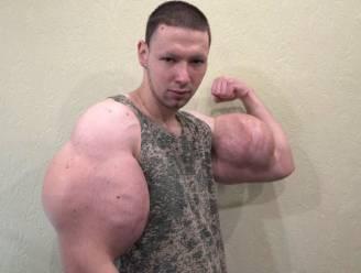Russische MMA-vechter die biceps inspoot met olie, vreest armen te verliezen