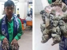 """L'""""homme-arbre"""" va devoir être réopéré au Bangladesh"""