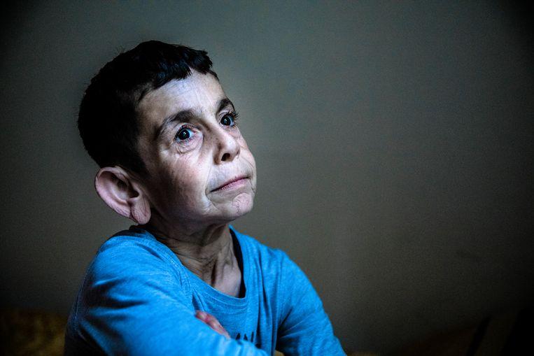Mohamad lijdt aan cutis laxa, een uiterst zeldzame bindweefselziekte.  Beeld MARLENA WALDTHAUSEN