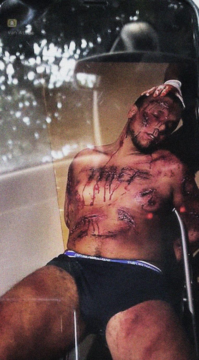 Deze foto moet bewijzen dat Gabriel C. dood zou zijn. Totaal ongeloofwaardig, concluderen artsen.  Beeld rv