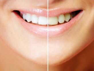 Zelf natuurlijk je tanden bleken, een goed idee?