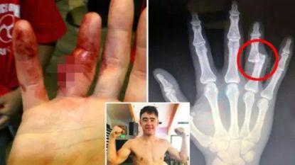 Van een hoge pijngrens gesproken: bot schiet los door vinger, maar MMA-vechter timmert zich met toegetakelde hand richting zege