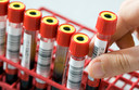 De eerste coronapatiënt heeft in het Rotterdamse Erasmus MC bloedplasma gekregen van een genezen donor.